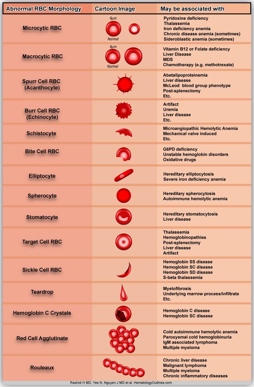 Erythrocytes, Abnormal B12 Deficiency Smear